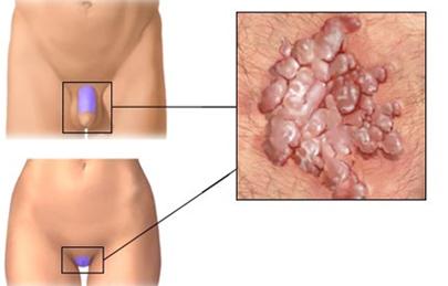 Gyulladás polipok és nemi szemölcsök kialakulásával - A HPV-fertőzés előfordulása