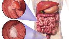 metasztatikus rák életciklus végének tünetei