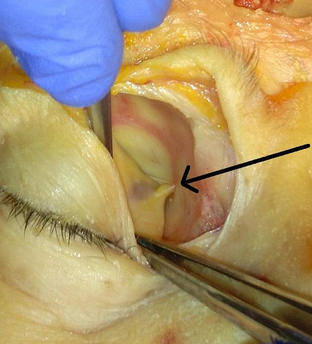 oncocita invertált papilloma