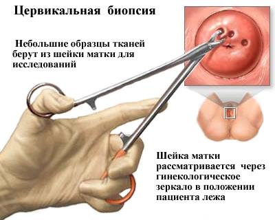 képes gyógyítani az emberi papillomavírust)