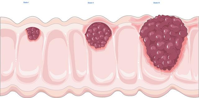 papillomavírus diagnózis féreg xaxim