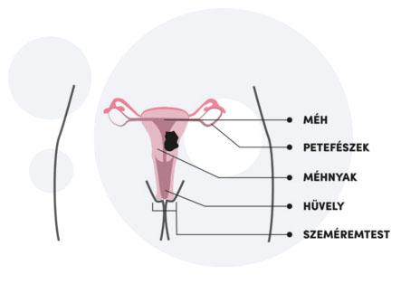 hpv rák tünetei nőknél)