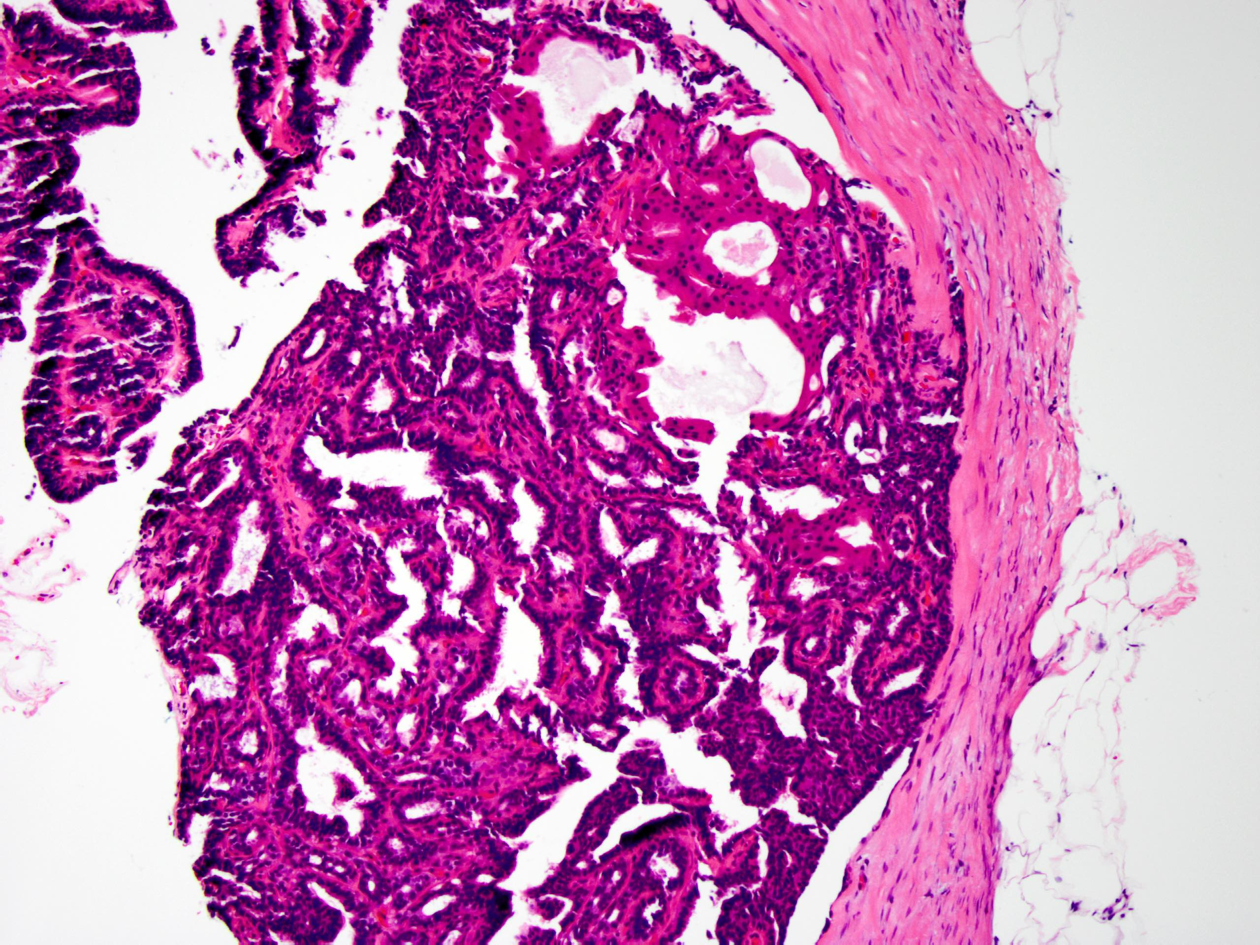 az intraductalis papillómák eltávolítását el kell távolítani
