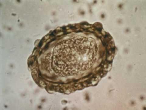 A condyloma acuminatum tünetei, kezelése és megelőzése, Szeméremtest szemölcsök