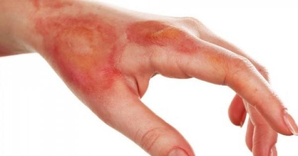 Égési sérülések tünetei és kezelése