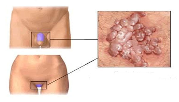 papuláris gallér vagy condyloma