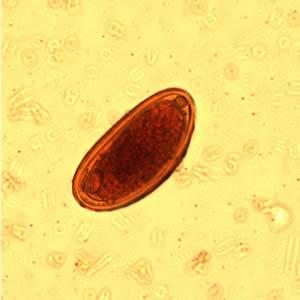 enterobius vermicularis fajta)