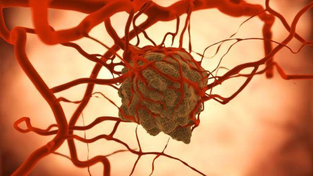Az áttét megállítása gyógyíthatja a rákot