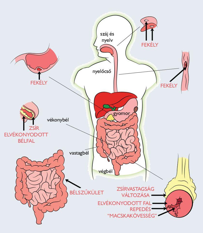 máj méregtelenítés természetes kezelés hashártya rák kockázata