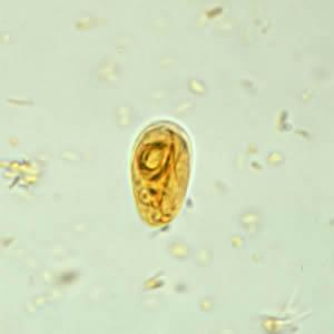 cysta duodenalis giardia)