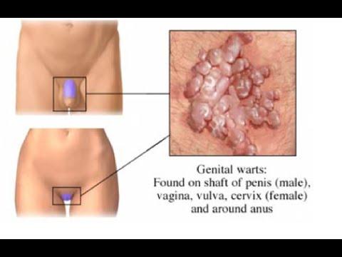 Condyloma eltávolítás - Urológia | Med-Aesthetica