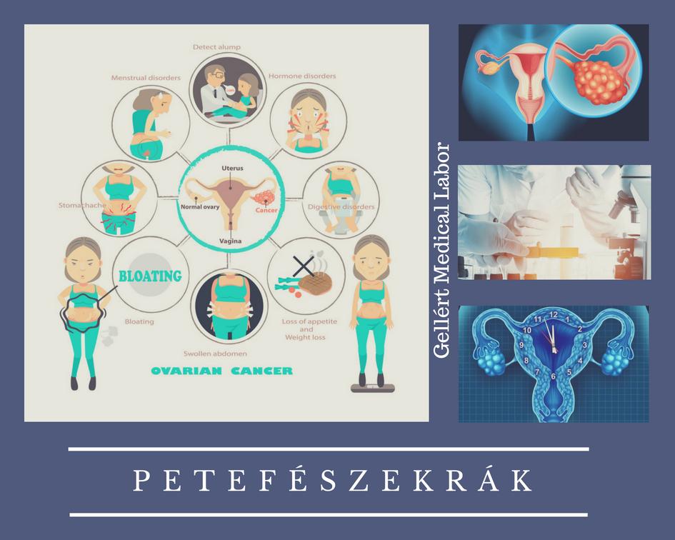petefészekrák első tünetei