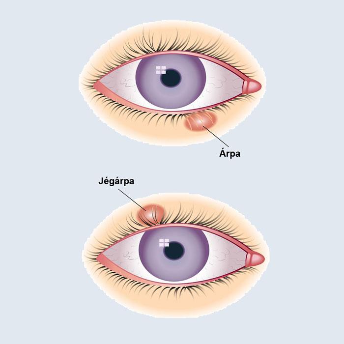 parazita szemek tünetei és kezelése