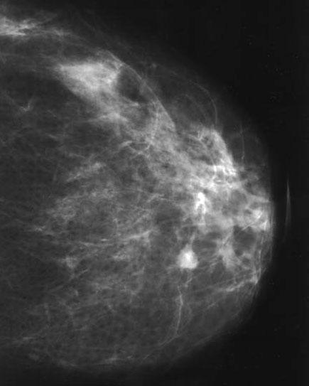 Melldaganatok, emlőrák, mellrák tünetei, kivizsgálása