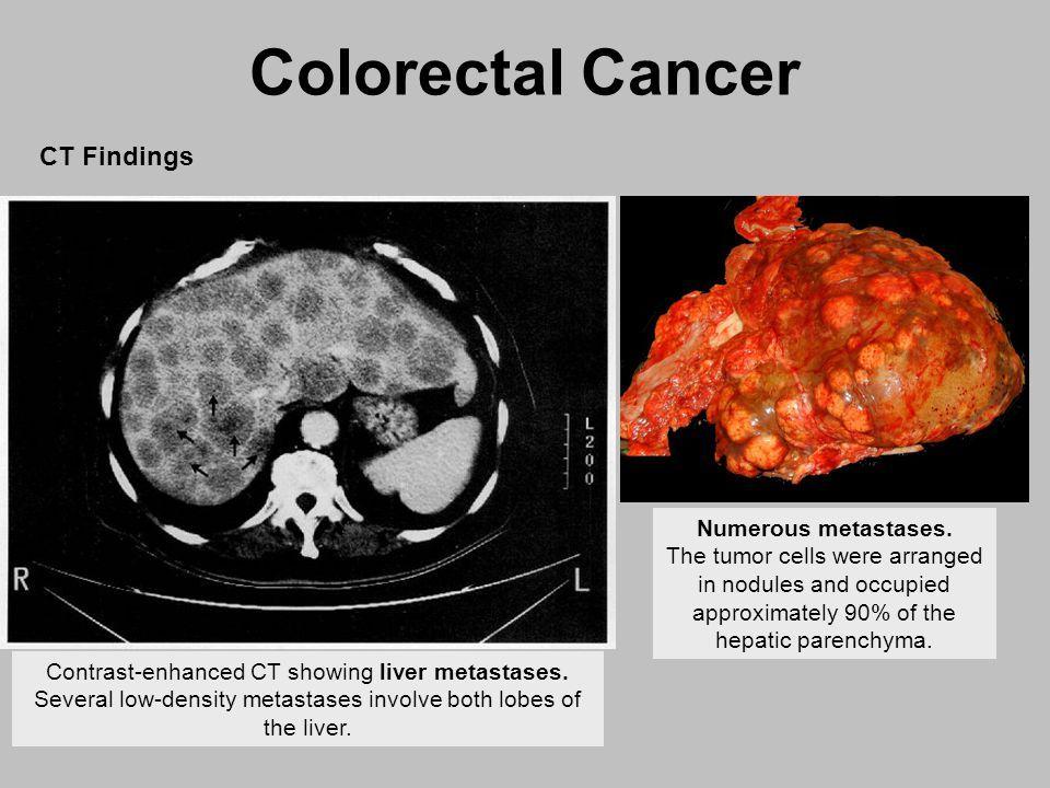 Vastagbélrák (colon carcinoma, colorectalis carcinoma)
