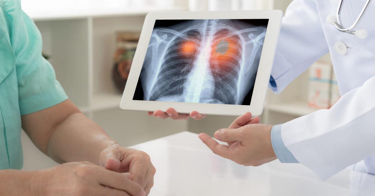 tüdőrák köhögés