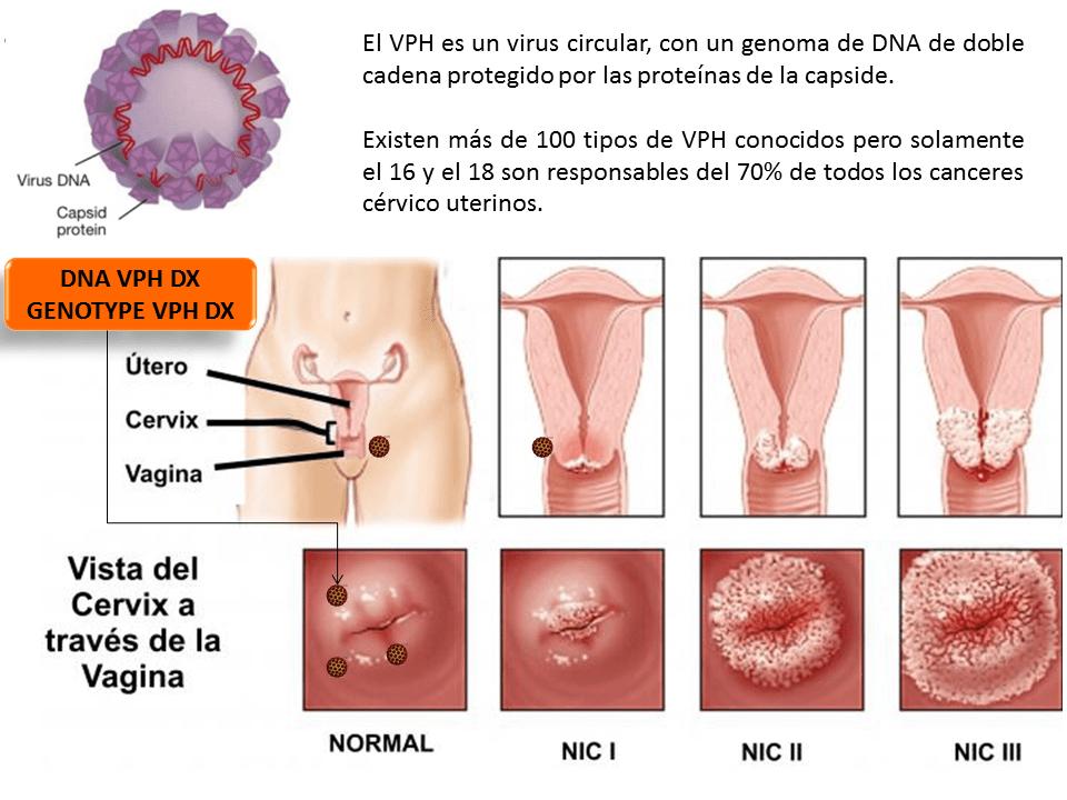 papillomavírus 16 szemölcsök, hogyan ne fertőzze meg a partnert