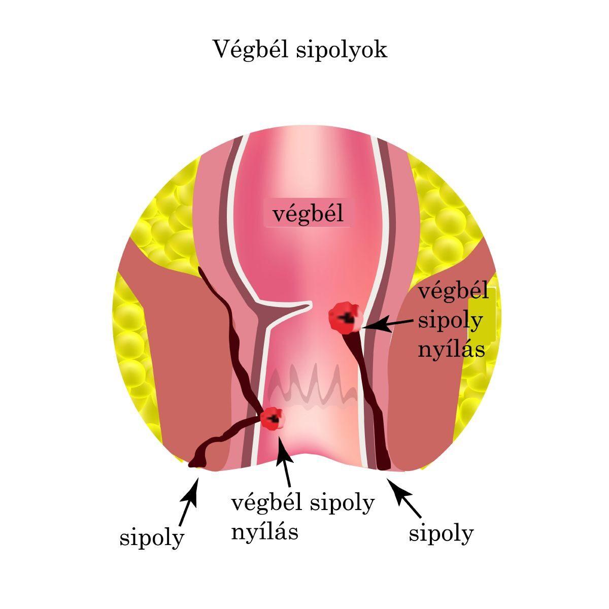 coccyx rák tünetei