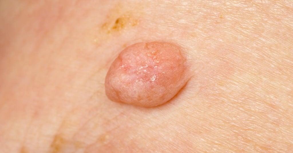 papilloma kulit adalah