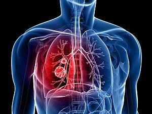 tüdőrák okai és tünetei)