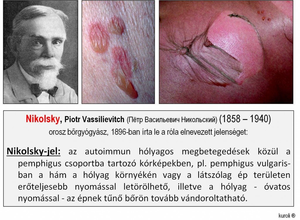 papilloma szövettani bőr)