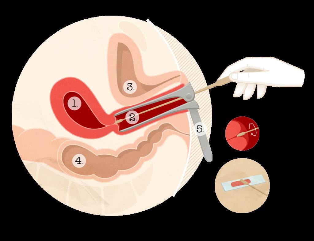 papillomavirus frottis)