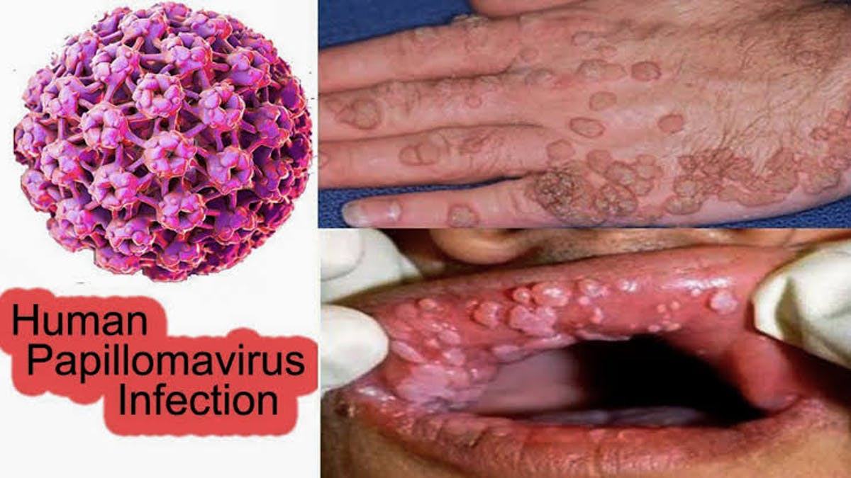 humán papilloma vírus (hpv))