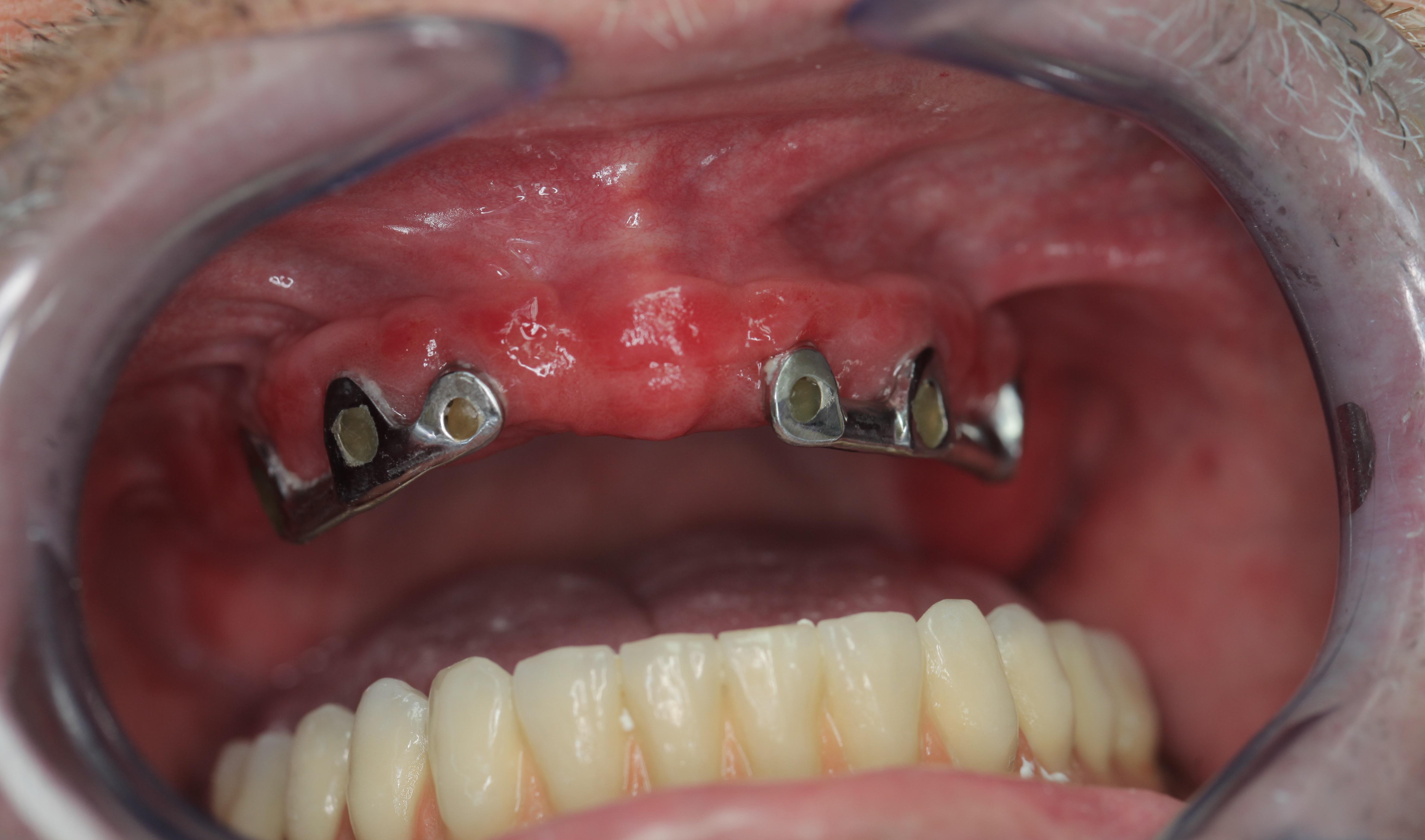 papillómák eltávolítása a szájban