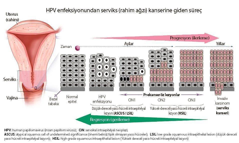 hpv leep tedavisi)