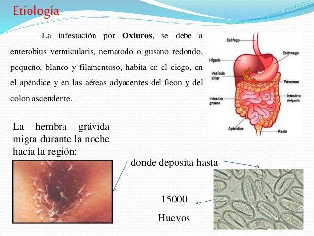 emberben a helminthiasis kezelésének eszközei paraziták elleni gyógymódok Tulában