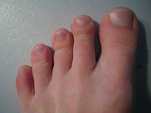 Mit tehetünk az eltorzuló lábujjak ellen?   Ridikül