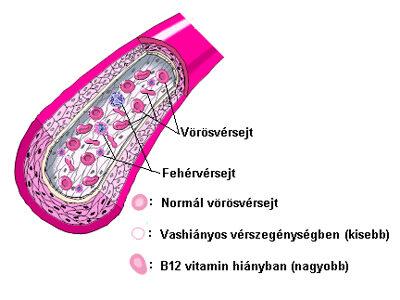 daganatos vérszegénység)