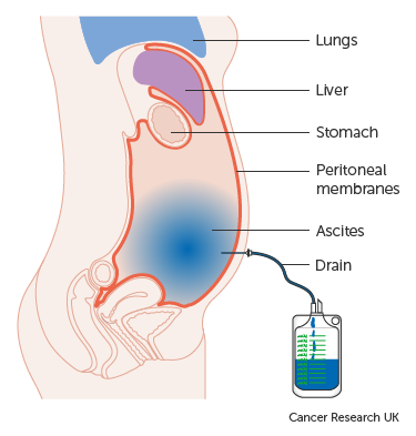 elsődleges peritoneális rák tünetei