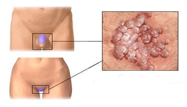 papilloma a nemi szervek területén