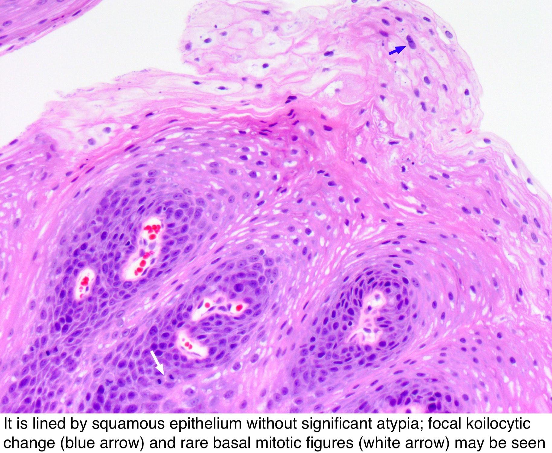 Lézerek gyakorlati alkalmazása a proctológiai sebészetben – Kardirex Egynapos Sebészeti Centrum