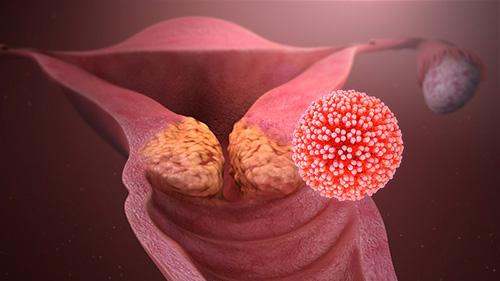 hpv vírus gebarmutter