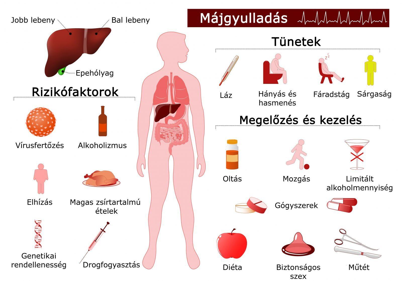bélparaziták felnőttkori tünetek