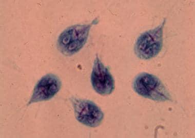 fertőző giardiasis)