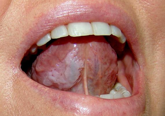 szájüregi rák tünete
