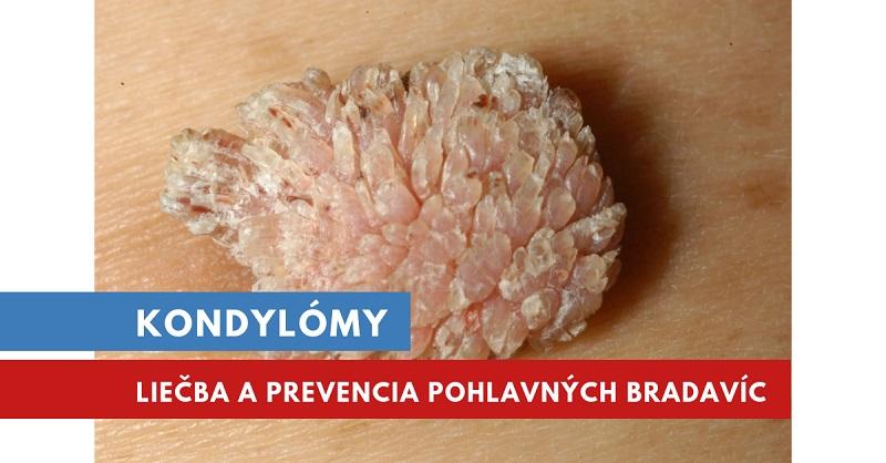 ivanchenko szerint megtisztítja a paraziták testét a condyloma okai a lányokban