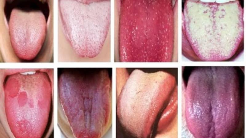 papillómák a nyelv gyökerénél