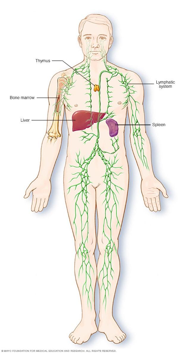 megmagyarázhatatlan fogyás lymphoma