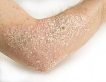 Hatékonyak lehetnek a HPV ellen egyes daganatellenes szerek