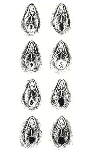 a női condyloma betegségei