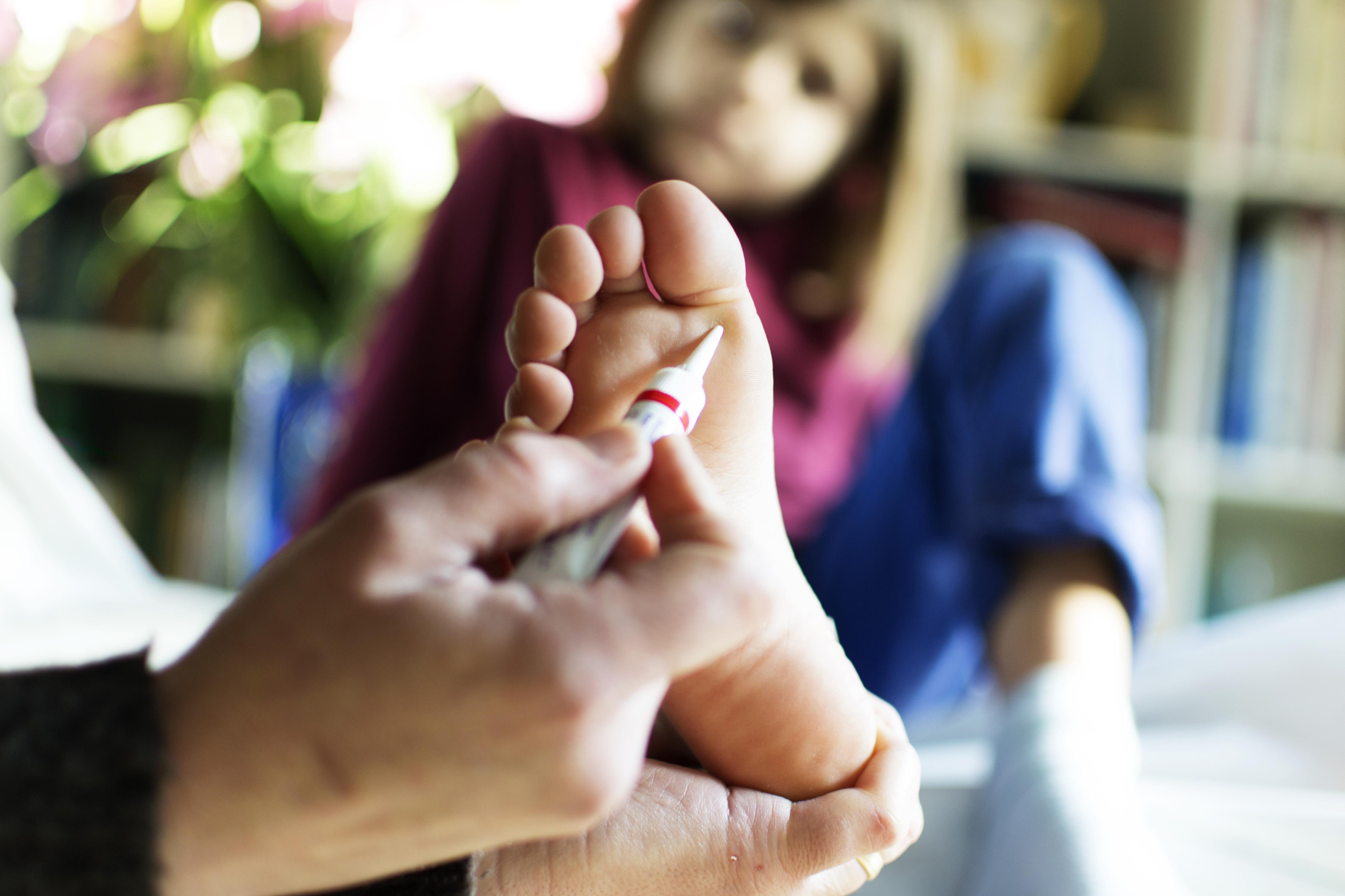 szemölcs kezelés ujja)