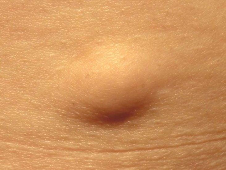 Húgyhólyagrák (Cancer vesicae urinariae)