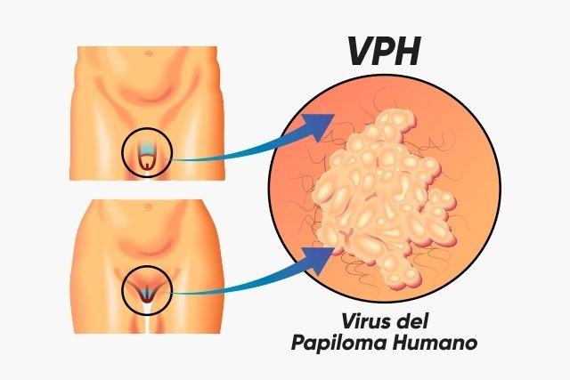 q papilloma vírus