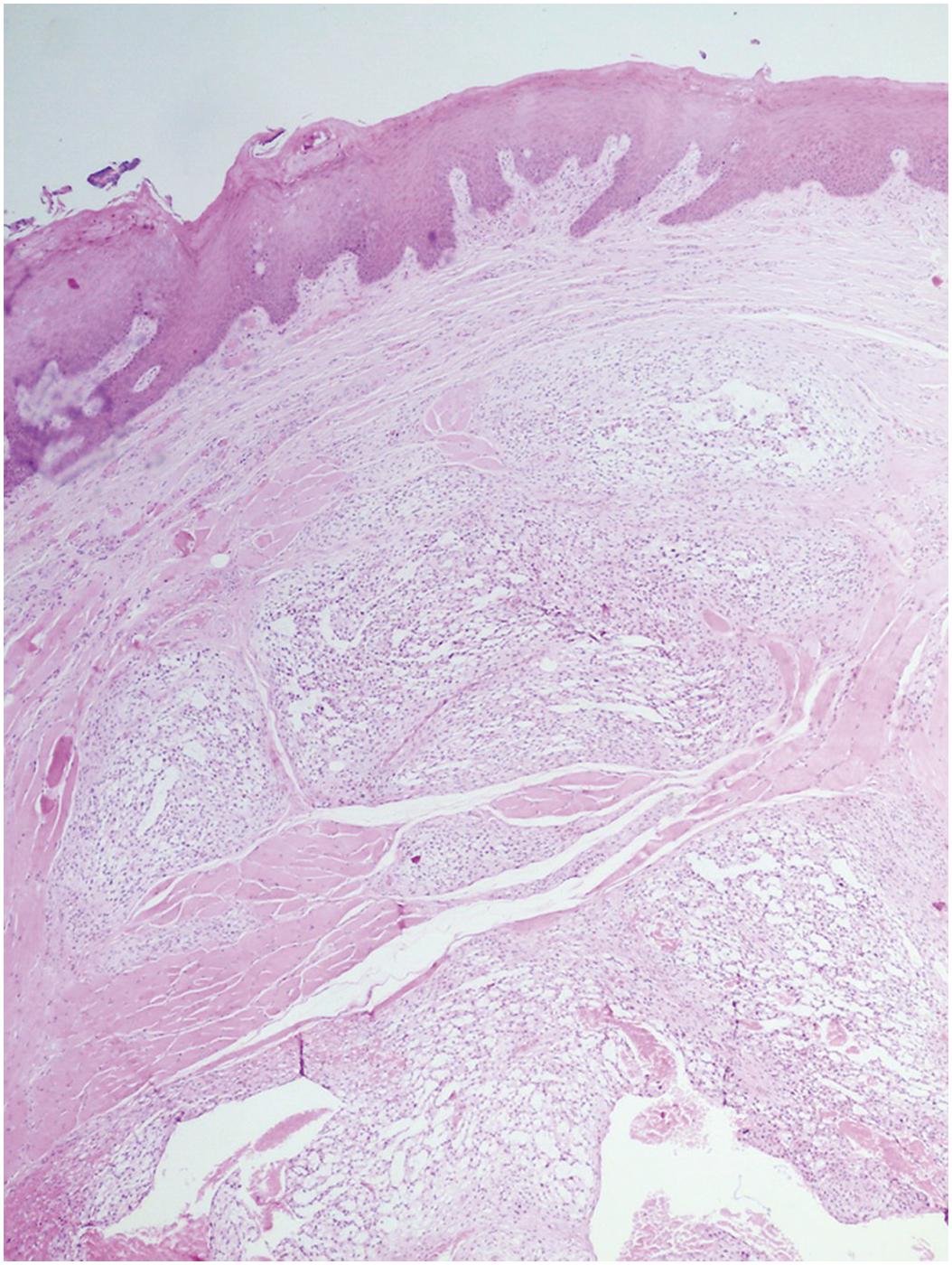 exophytic condyloma a méhnyak