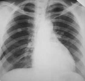 tüdőrák szakaszai)