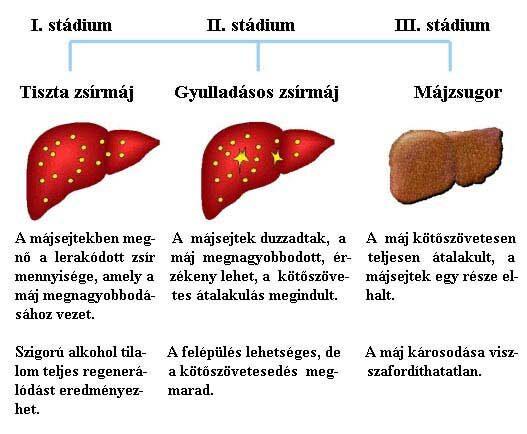 Májrák | Magyar Rákellenes Liga